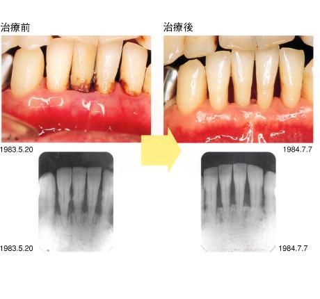 周 病菌 歯
